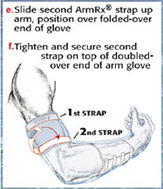 Fitting the Arm Glove to your Arm